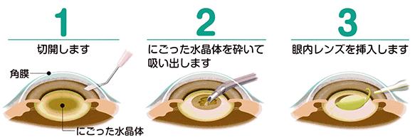 日帰り手術 | みどりレディースクリニック 横浜